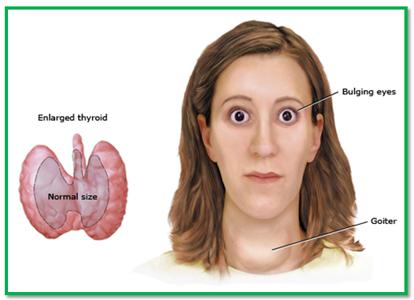 Hyperthyroidism